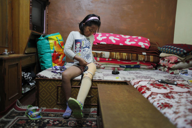 In this March 9, 2016 photo, Khendo Tamang, 8, adjusts her prosthetic leg in Kathmandu, Nepal. Khendo was in her home village, Banskharka, when Nepal's massive April 2015 earthquake stuck. Her grandmother and sister were both killed when the house they were in collapsed during the quake. Khendo was pulled with severe leg injuries from the wreckage. (Photo by Niranjan Shrestha/AP Photo)