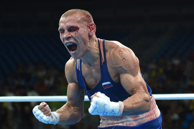 Blood covered Russia's Vladimir Nikitin reacts to winning against Ireland's Michael John Conlan during the Men's Bantam (56kg) Quarterfinal 1 match at the Rio 2016 Olympic Games at the Riocentro – Pavilion 6 in Rio de Janeiro on August 16, 2016. (Photo by Yuri Cortez/AFP Photo)