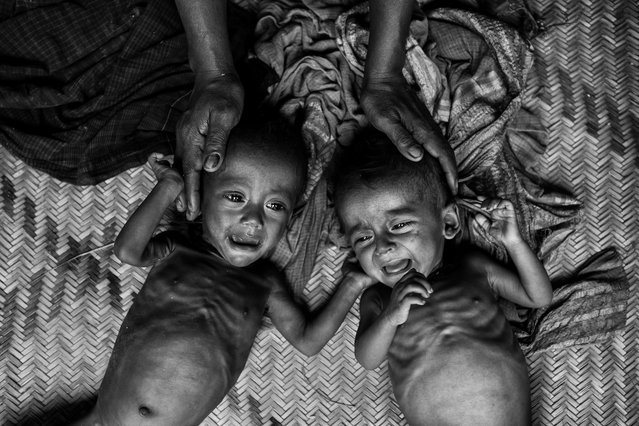 Malnourished and suffering from diarrhea, two Rohingya refugee children cry on the floor of a makeshift shelter at the Balukali refugee camp on September 27, 2017 in Cox's Bazar, Bangladesh. (Photo by Kevin Frayer/Getty Images)