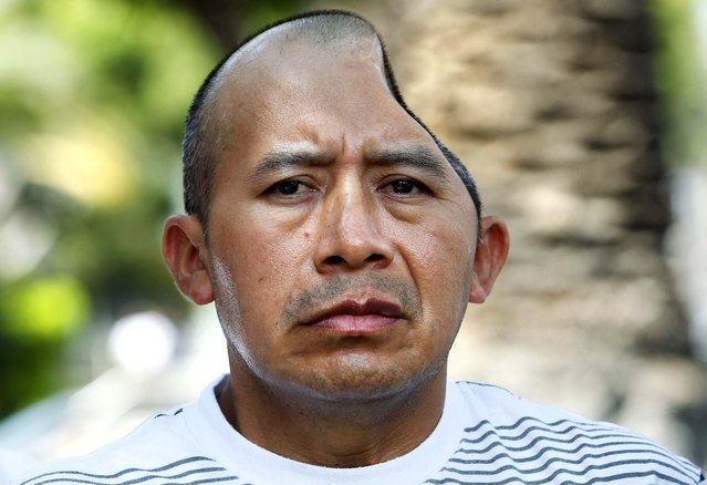 Antonio Lopez Chaj, a 43-year-old house painter, appears with his attorneys at a news conference in Los Angeles, on July 1, 2013. Lopez Chaj is so badly brain damaged from a beating in a bar that left him with half his skull permanently bashed in that he cannot speak. His lawyers announced he has been awarded a $58 million by a jury in Torrance Superior Court. (Photo by Nick Ut/Associated Press)