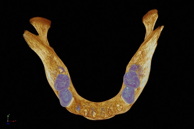 Bird's eye view of a model of a medieval human mandible (lower jawbone). To image the specimen, 4800 virtual x-ray slices were captured using a micro CT scanner. These were then used to create a digital model and colour textures were applied to highlight the teeth (blue) and bone (brown). (Photo by Kevin Mackenzie/University of Aberdeen/Wellcome Images)