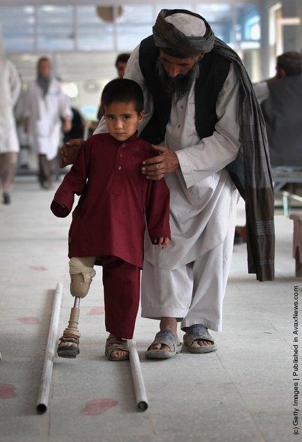 Afghan war amputees