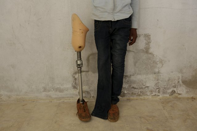 A young man with an amputated leg poses for a photograph standing by his broken artificial limb in the rebel-controlled area of Maaret al-Numan town in Idlib province, Syria March 20, 2016. (Photo by Khalil Ashawi/Reuters)