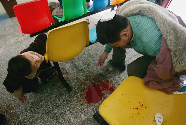The head of a boy bleeds after he was attacked by another boy with a scoop at an assistance center February 24, 2005 in Shenzhen, Guangdong Province, China. (Photo by Cancan Chu/Getty Images)