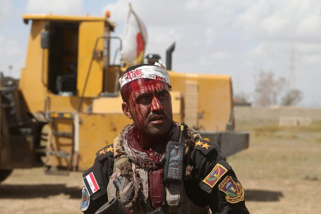 An injured Iraqi officer waits for treatment on the front line during clashes with Islamic State extremists in Tikrit, 80 miles (130 kilometers) north of Baghdad, Iraq, Tuesday, March 31, 2015. Iraqi forces battled Islamic State militants holed up in downtown Tikrit, going house to house Tuesday in search of snipers and booby traps, and the prime minister said security forces had reached the heart of the city. (Photo by Khalid Mohammed/AP Photo)
