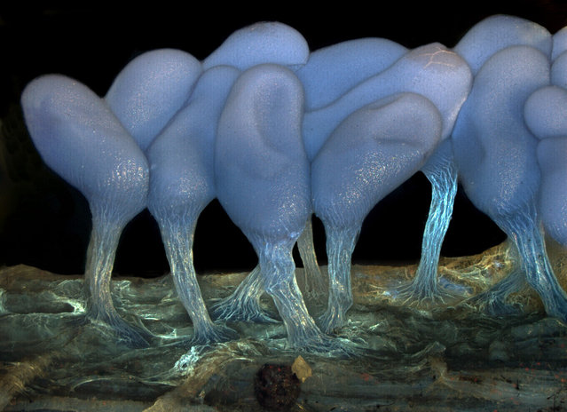 Young sporangia of slime mold Arcyria stipata, by Dr. Dalibor Matýsek, of the Mining University – Technical University of Ostrava, Ostrava, Czech Republic. (Photo by Olympus BioScapes)