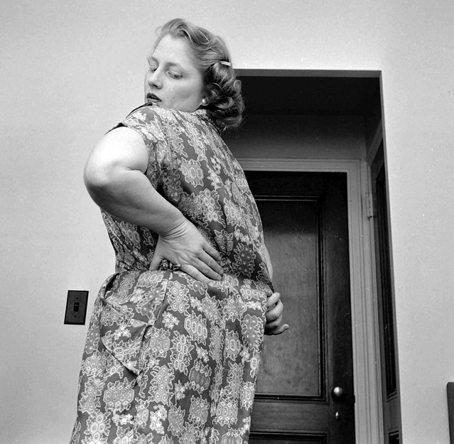 Dorothy Bradley, photographed for LIFE magazine article on obesity, tries on a dress, 1949. (Photo by Martha Holmes/Time & Life Pictures)