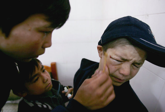 Kids look after the wounds of another boy after a fight at an assistance center February 23, 2005 in Shenzhen, Guangdong Province, China. (Photo by Cancan Chu/Getty Images)