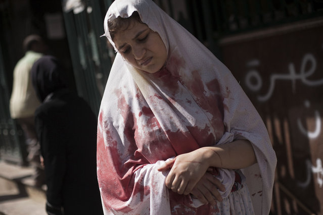 A wounded woman, still in shock, leaves Dar El Shifa hospital in Aleppo, Syria. Dozens of Syrian civilians were killed on Thursday, four children among them, in artillery shelling by government forces in the northern Syrian town of Aleppo, Thursday, September 20, 2012. (Photo by Manu Brabo/AP Photo)