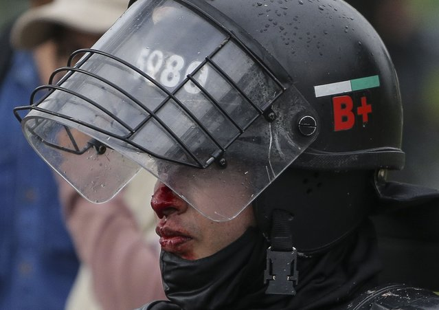 An injured police officer stands by during clashes with anti-government protesters in Bogota, Colombia, Wednesday, June 9, 2021. (Photo by Ivan Valencia/AP Photo)