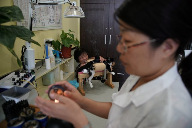 A single session of treatment costs 260 yuan ($39) and lasts about 45 minutes. (Photo by Aly Song/Reuters)