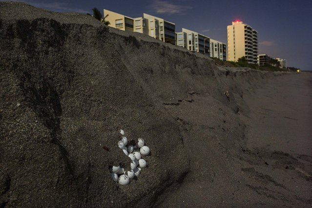 Turtle eggs are exposed along the shoreline after high surf carved out the sand. (Photo by Greg Lovett/The Palm Beach Post)