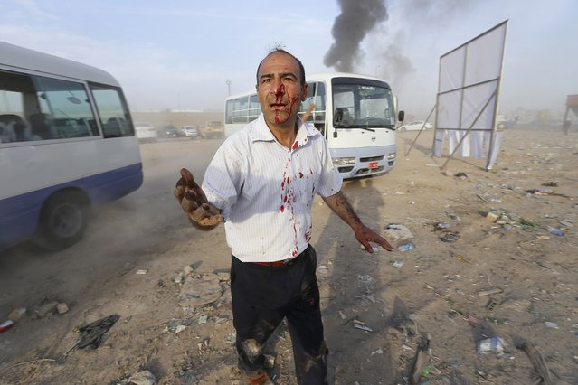 A man wounded after a car bomb attack during a Shi'ite political organisation's rally reacts at the site in Baghdad, April 25, 2014. A series of explosions killed 18 people at a Shi'ite political organisation's rally in Iraq on Friday, police and medical sources said. The militant group, Asaib Ahl Haq (League of the Righteous), introduced its candidates for elections on April 30 at the rally in eastern Baghdad. (Photo by Thaier al-Sudani/Reuters)