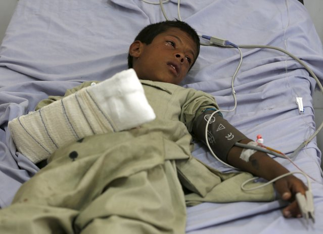 An Afghan boy receives treatment at a hospital after a suicide car bomb in Kabul, Afghanistan August 10, 2015. (Photo by Omar Sobhani/Reuters)
