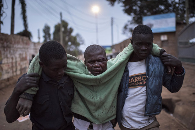 A man who was badly beaten is carried in the Kibera slum on August 12, 2017 in Nairobi, Kenya. Police clashed with opposition supporters overnight as Uhuru Kenyatta was announced as president for his second term. (Photo by Andrew Renneisen/Getty Images)