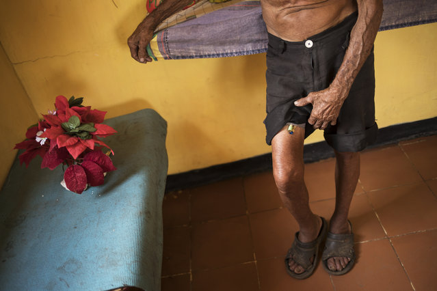 Jose Calderon lifts his shorts to show tubes that are part of his prostrate treatment in Maracaibo, Venezuela, November 20, 2019. The 86-year-old said the tubes should be changed monthly, but he's only been able to afford for them to be replaced twice this year. (Photo by Rodrigo Abd/AP Photo)