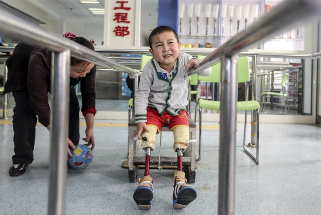 A two-year-old boy, whom local media identified by the pseudonym Xiaofeng, reacts as he practises with his prosthetic legs at a hospital in Wuhan, Hubei province, China, April 24, 2015. Xiaofeng lost his legs in a traffic accident and was installed with prosthesis earlier this month. (Photo by Reuters/Stringer)