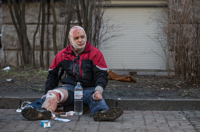 An injured anti-government protester is treated for injuries sustained during clashes with riot police outside Ukraine's parliament on February 18, 2014 in Kiev, Ukraine. Violent clashes erupted yesterday following renewed anti-government protests, with the death toll rising to 25. (Photo by Vladislav Sodel/Kommersant Photo via Getty Images)