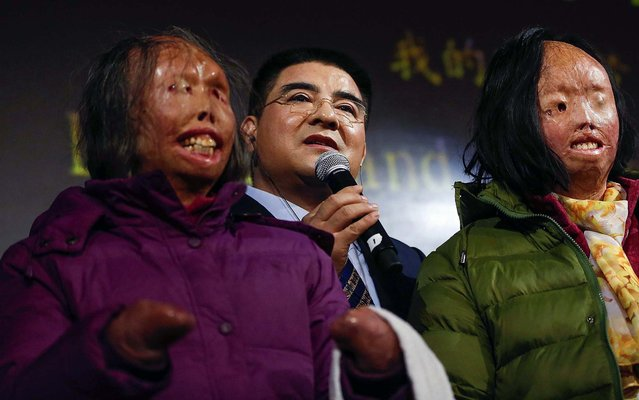 Chinese philanthropist Chen Guangbiao speaks during a news conference in New York, on January 7, 2014,  announcing his underwriting for the full surgical regimen of mother and daughter, Hao Huijun and Chen Guo, who were disfigured after their 2001 self-immolation incident in Tiananmen Square. (Photo by Shannon Stapleton/Reuters)