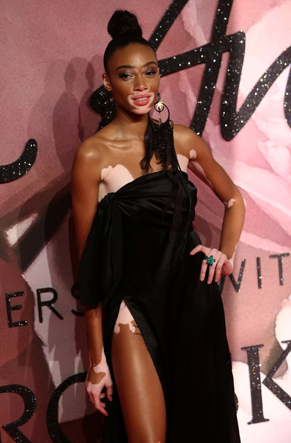 Model Winnie Harlow poses for photographers at the Fashion Awards 2016 in London, Britain December 5, 2016. (Photo by Neil Hall/Reuters)
