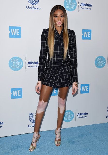 Model Winnie Harlow attends WE Day California at The Forum on April 19, 2018 in Inglewood, California. (Photo by Axelle/Bauer-Griffin/FilmMagic)