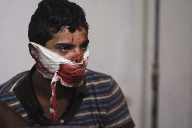 A youth sits with a blood-soaked bandage around his face at a field hospital after what activists said was an air strike by the forces of Syria's President Bashar al-Assad in the Duma neighbourhood of Damascus January 4, 2015. (Photo by Badra Mamet/Reuters)