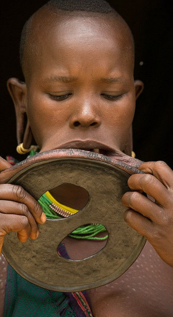 Woman With The World's Biggest Lip Disc