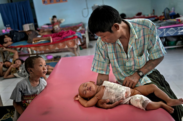 At the Mae Tao Clinic this 5-month old child receives free medical care for her burns. The child pulled a pot of hot water on herself as she was being watched by her 11-year old sister while her parents farmed. Here, her father, Zaw Win, and another child anxiously hope for her recovery. Mae Sot, Thailand. (Photo by Renée C. Byer/Living on a Dollar a Day)