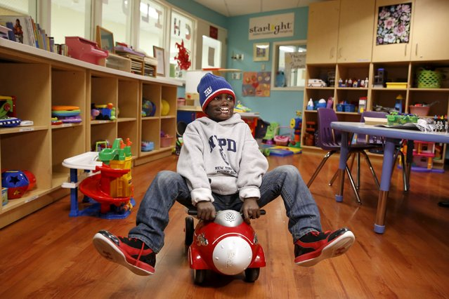 Dunia Sibomana, 8, who was attacked two years ago by a chimpanzees in his village in the Democratic Republic of Congo, rides on a toy car at Stony Brook Children's Hospital in Stony Brook, New York January 6, 2016. Doctors at Stony Brook Children's Hospital will begin a series of extensive facial reconstructive surgeries on Sibomana on Monday. (Photo by Shannon Stapleton/Reuters)