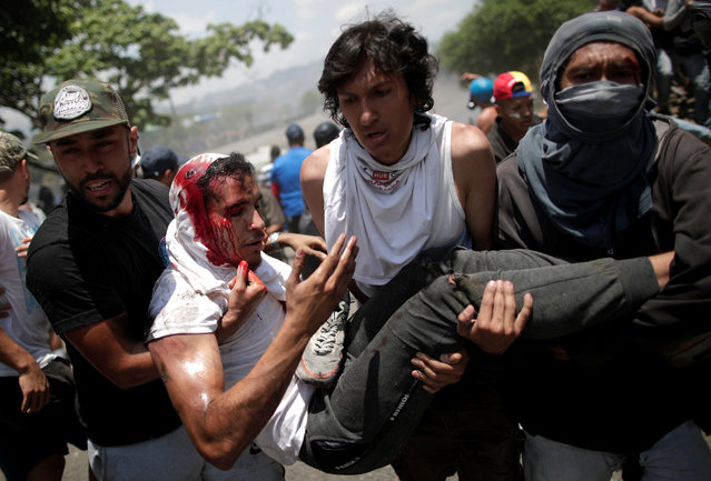 """An opposition demonstrator bleeds from his head as he is carried by fellow protesters after being run over by a Venezuelan National Guard vehicle on a street near the Generalisimo Francisco de Miranda Airbase """"La Carlota"""", in Caracas, Venezuela April 30, 2019. (Photo by Ueslei Marcelino/Reuters)"""