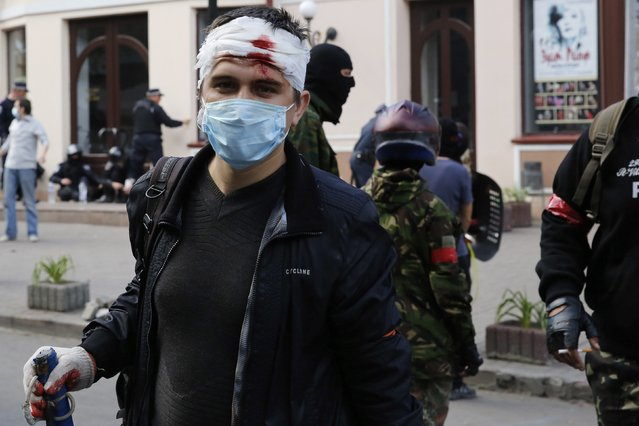 An injured pro-Russian activist looks on during clashes with supporters of the Kiev government in the streets of Odessa May 2, 2014. (Photo by Yevgeny Volokin/Reuters)