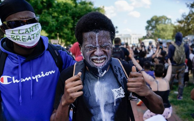 A demonstrator reacts after having milk poured into his eyes during as demonstrators gather to protest the death of George Floyd, Sunday, May 31, 2020, near the White House in Washington. Floyd died after being restrained by Minneapolis police officers. (Photo by Evan Vucci/AP Photo)