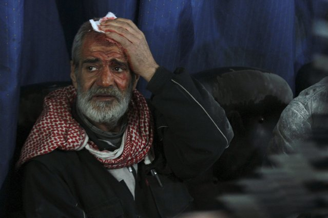 A man holds a bandage to his head at a field hospital after being injured in what activists said was an air strike by the forces of Syria's President Bashar al-Assad in the Duma neighbourhood of Damascus January 4, 2015. (Photo by Badra Mamet/Reuters)