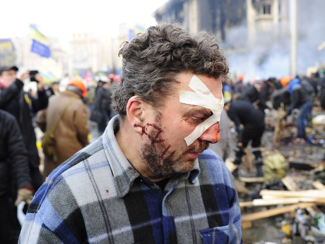 Injured anti-government protester at the Independence Square in Kiev. (Photo by Alexander Koerner/Getty Images)