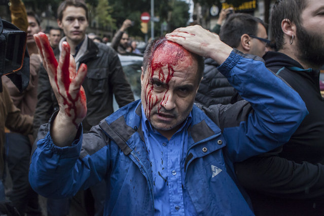 """A man got hurt after being hit by a plastic bullet. People clash with the Spanish police """"Policia Nacional"""" after they closed down a polling station.Today the referendum was held to vote for the independence of Catalunya region. (Photo by Andrea Baldo/LightRocket via Getty Images)"""