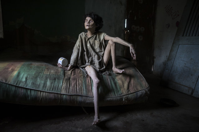 "Zaida Bravo, who suffers Parkinson's disease and is malnourished, waits for dinner on her dirty mattress in her one room living quarters in Maracaibo, Venezuela, November 28, 2019. The 48-year-old's sister Ana Bravo brings her food when she can, but for the last four years the older sister has had trouble affording even rice or cornmeal. ""We can't find her medicine or even know how to help her, so we're letting what happens happen"", Ana Bravo, 57, said. ""Sometimes, I'm afraid to go inside and find her dead"". (Photo by Rodrigo Abd/AP Photo)"