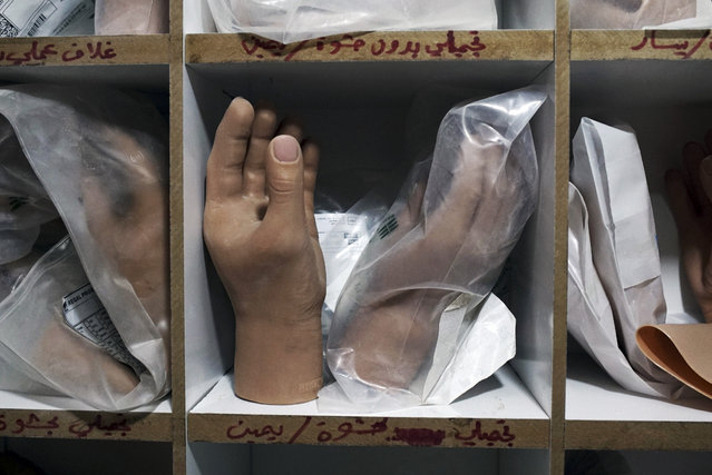 Parts for the prosthetic limbs, mostly manufactured in Turkey, are stored at a clinic in the Turkish border town of Reyhanli, where hundreds of wounded Syrians come in every week to receive prosthetic limbs, Wednesday, April 20, 2016. Treatment at the clinic is free and only for Syrian civilians and fighters who lost their limbs in the war in their home country. (Photo by Bram Janssen/AP Photo)