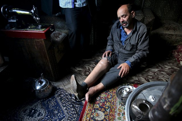 Shahrour, 54, whose leg was amputated due to complications from diabetes, sits in his home in the besieged town of Arbeen, in Damascus suburbs, Syria February 6, 2016. (Photo by Bassam Khabieh/Reuters)