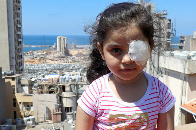 Sama al-Hamad, 6-year-old Syrian girl who lost her left eye in the August 4 cataclysmic explosion, poses for a picture on the roof of her damaged house in Beirut's Mar Mikhael district overlooking the blast site on August 15, 2020. The powerful August 4 explosion that killed 177 people and devastated swathes of the Lebanese capital also left thousands wounded, mostly from flying shards of glass. At least 400 people suffered ocular injuries, more than 50 required surgery, and at least 15 were permanently blinded in one eye, according to data compiled by major hospitals in and around Beirut. (Photo by Anwar Amro/AFP Photo)
