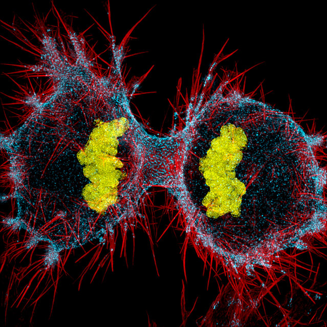 12th Place: Human HeLa cell undergoing cell division (cytokinesis). DNA (yellow), myosin II (blue) and actin filaments (red). (Photo by Dylan Burnette/Nikon's Small World 2016)