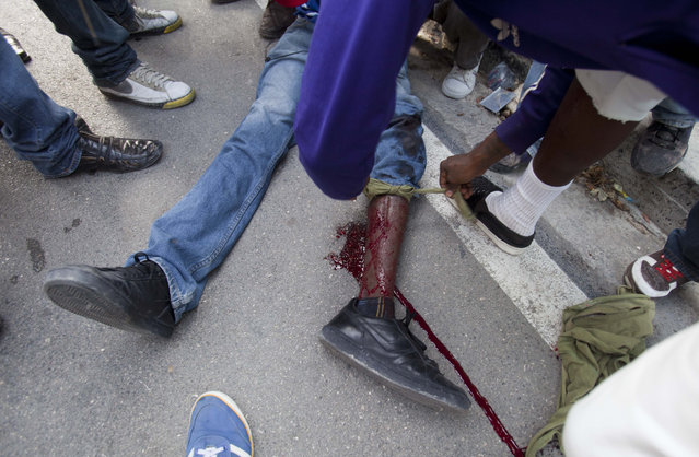 A man knots a makeshift tourniquet to help stop the bleeding of a protester who was shot in the leg after clashes broke out with national police during a demonstration to demand the resignation of President Michel Martelly, in Port-au-Prince, Haiti. Saturday, January 17, 2015. (Photo by Dieu Nalio Chery/AP Photo)