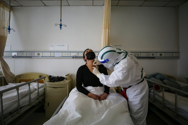 A patient (L) infected by the COVID-19 coronavirus receives acupuncture treatment at Red Cross Hospital in Wuhan in China's central Hubei province on March 11, 2020. China reported an increase in imported coronavirus cases on March 11, fuelling concerns that infections from overseas could undermine progress in halting the spread of the virus. (Photo by AFP Photo/China Stringer Network)