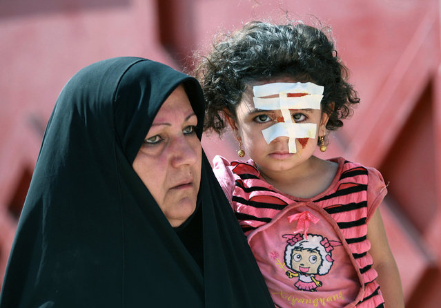 In this August 25, 2010 file photo, an Iraqi girl wears bandages after being injured in a bombing in Karbala, 50 miles (80 kilometers) south of Baghdad, Iraq. Frequent bombings, assassinations and a resurgence in violence by Shiite militias have made Iraq more dangerous now than it was just a year ago, a U.S. government watchdog concludes in a report released Saturday, July 30, 2011. (Photo by Ahmed al-Husseini/AP Photo)