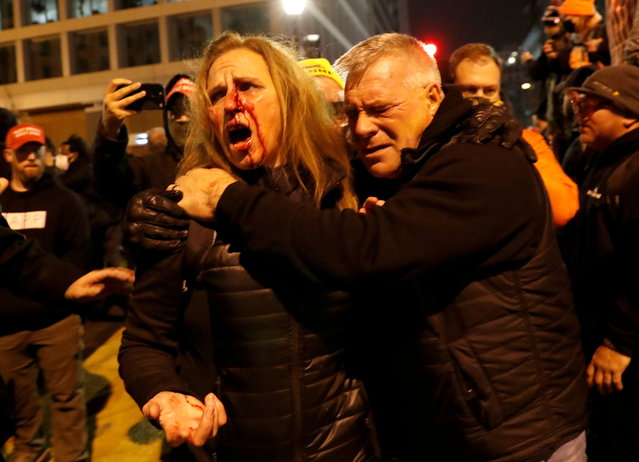 An injured supporter of U.S. President Donald Trump is helped after a clash with counter-protesters during protests in Washington, U.S., ahead of the U.S. Congress certification of the November 2020 election results, January 5, 2021. (Photo by Shannon Stapleton/Reuters)