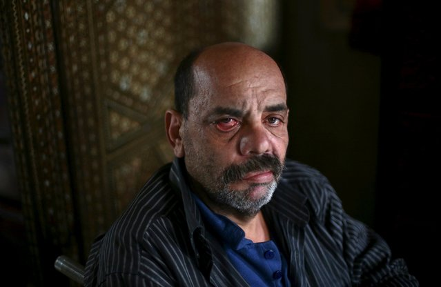 Shahrour, 54, poses for a photograph at his home in the besieged town of Arbeen, in the Damascus suburbs, Syria February 6, 2016. (Photo by Bassam Khabieh/Reuters)