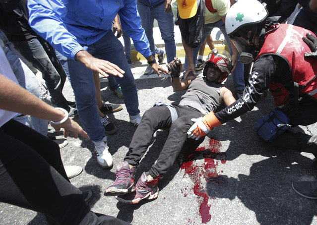 A man who was run over by a Bolivarian National Guard vehicle is aided by fellow anti-government protesters outside La Carlota airbase during an attempted military uprising in Caracas, Venezuela, Tuesday, April 30, 2019. (Photo by Boris Vergara/AP Photo)