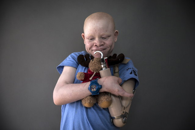 13-year-old Emmanuel Festo from Tanzania poses for a portrait with a plush toy that he says makes him feel safe at night and that he sleeps with, in New York's Staten Island, September 21, 2015. Albino body parts are highly valued in witchcraft and can fetch a high price. Superstition leads many to believe albino children are ghosts who bring bad luck. (Photo by Carlo Allegri/Reuters)