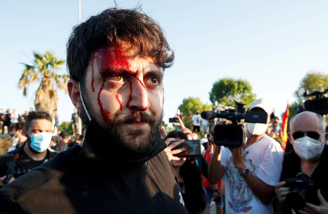 An injured man is seen after clashes between people and police during a visit of Italy's far-right League party leader Matteo Salvini at a village near Naples, after more than 40 people tested positive for the coronavirus disease (COVID-19) in a residential complex, in Mondragone, Italy, June 29, 2020. (Photo by Ciro de Luca/Reuters)
