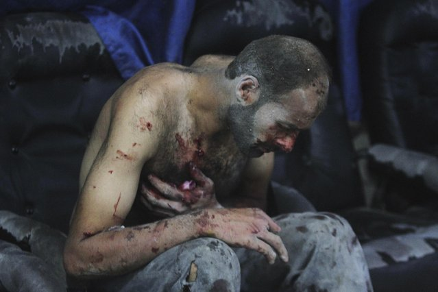 An injured man sits at a field hospital after what activists said were air strikes by forces loyal to Syria's President Bashar al-Assad, in the Duma neighbourhood of Damascus, in this September 9, 2014 file photo. (Photo by Badra Mamet/Reuters)