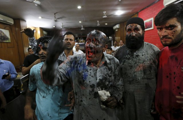 Kashmiri lawmaker Sheikh Abdul Rashid, commonly known as Engineer Rashid, with his face smeared in black paint and ink thrown by the activists from Hindu Sena, a Hindu hardline group, talks to media after his news conference in New Delhi, India, October 19, 2015. (Photo by Adnan Abidi/Reuters)
